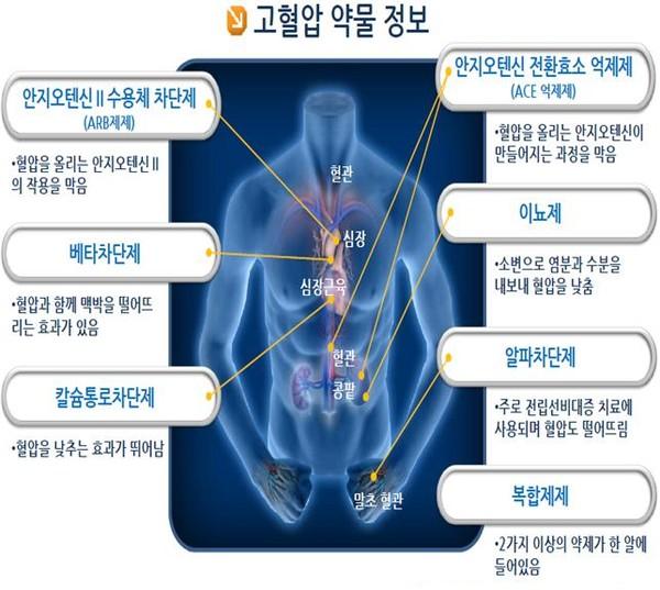 고혈압약의 종류